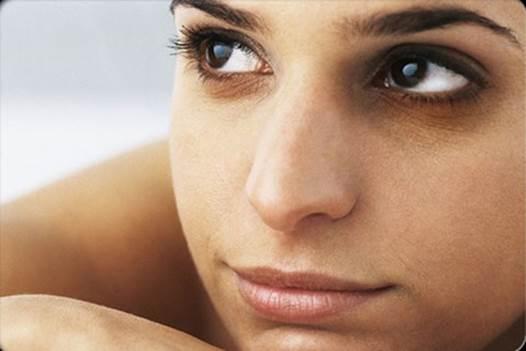 Dark Circles Under Eyes Shows 5 Diseases Women Easily Meet