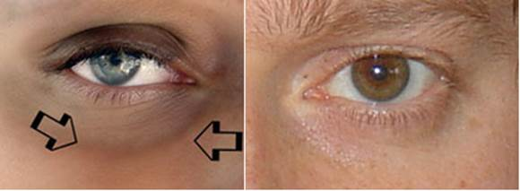 Natural Therapies For Ageing And Sunken Eyes
